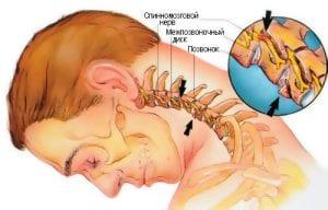 Шейный остеохондроз 2